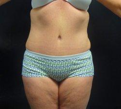 Manhattan abdominoplasty after 17